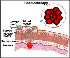 Chemotherapy - Drugs