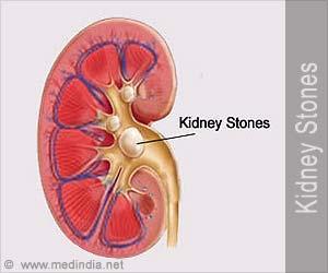 Kidney Stones / Renal Stones