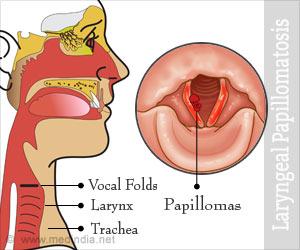 Papillomatosis in the larynx. Respiratory papillomatosis larynx, Peritoneal cancer hospice