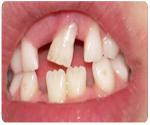 Loose Teeth Causes Symptoms Treatment Faqs