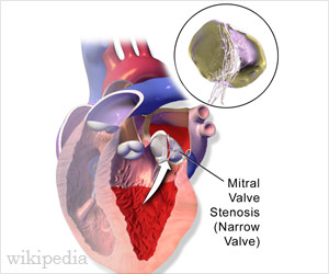 Mitral Valve Stenosis And Mitral Valve Replacement