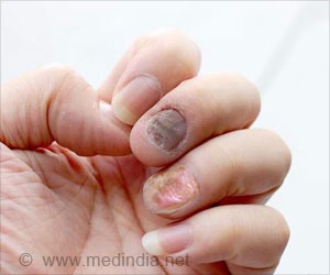 Nail Psoriasis - Causes, Symptoms, Diagnosis, Treatment & Prevention