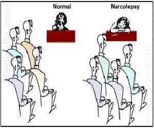Sleep Disorder: Narcolepsy