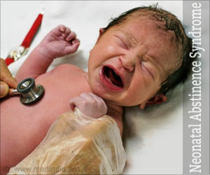 what is neonatal abstinence syndrome health essay Neonatal abstinence syndrome occurs when a pregnant woman takes addictive illicit or prescription drugs during the pregnancy drugs pass through the placenta and reach the baby the baby becomes addicted along with the mother at birth, the baby is still dependent on the drug because the baby is no.
