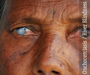 Onchocerciasis River Blindness Causes Symptoms