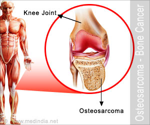 Osteosarcoma - Drugs