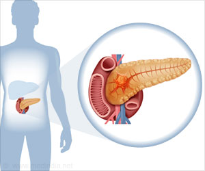 Pancreatic Cancer / Cancer of Pancreas