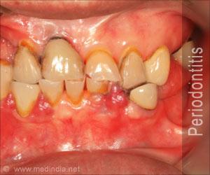 Periodontitis / Pyorrhea / Periodontal Gingivitis