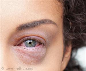 Pink Eye - Symptom Evaluation