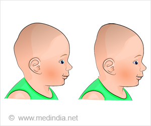 plagiocephaly types causes symptoms complications diagnosis