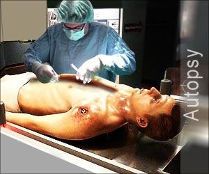 Latest News and Research on Autopsy