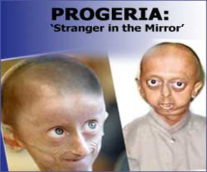 an analysis of progeria illness and the symptoms Children with progeria have bodies like those of elderly people, with wrinkled skin and poor eyesight and very few sufferers live beyond 13 years progeria (hutchinson-gilford progeria syndrome, hgps, progeria syndrome) is an extremely rare genetic disease wherein symptoms resembling aspects of aging are manifested at a very early age.