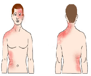 Shingles / Herpes Zoster/Post Herpetic Neuralgia/Chicken pox shingles