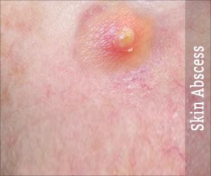 Boils / Skin Abscess