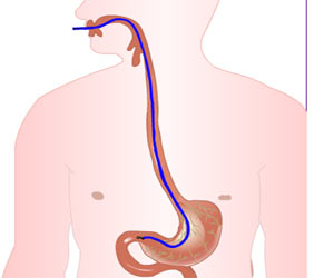 Small Intestine Biopsy