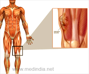 Sarcomul de țesut moale, Cancer sarcoma in abdomen