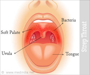 Strep Throat - Symptom Evaluation