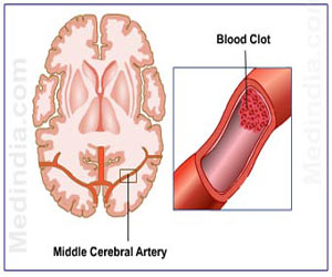Stroke – Early Warning Signs - Risk Factor - Rehab - Treatment