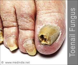 Toenail Fungus - Causes Symptoms Diagnosis Treatment Complications