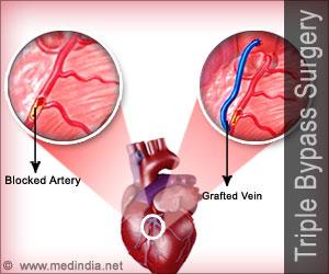 Coronary Artery Bypass Graft Cabg Triple Bypass Surgery