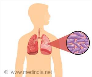 Tuberculosis / Pulmonary Tuberculosis / Lung Tuberculosis /TB