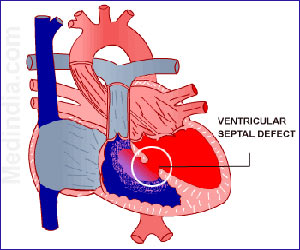 Congenital Heart Disease – Septal Defects