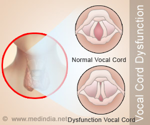 Vocal Cord Dysfunction Vocal Cord Malfunction Symptoms