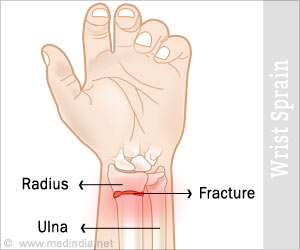 how to tell if your hand is broken or sprained