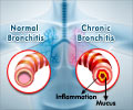 Quiz on Bronchitis (Advance)