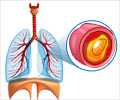 Quiz on Cystic Fibrosis (Advance)