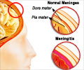 Quiz on Meningitis