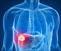 Test Your Knowledge on Liver Cancer