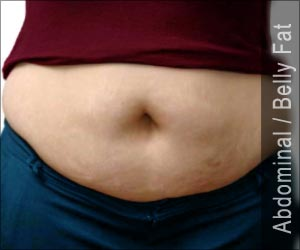 Test Your Knowledge on Abdominal / Belly Fat