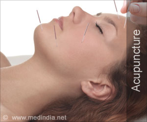 Test Your Knowledge on Acupuncture