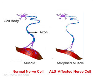 Test Your Knowledge on Amyotrophic Lateral Sclerosis (ALS)