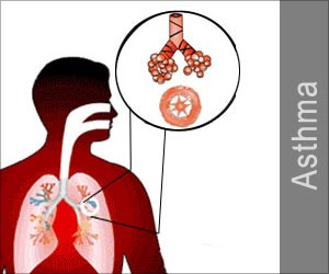 Test Your Knowledge on Asthma