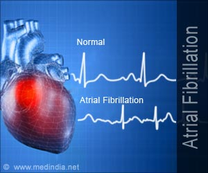Quiz on Atrial Fibrillation (Advance)