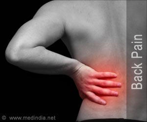 Test Your Knowledge on Back Pain