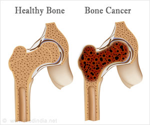 Quiz on Bone Cancer (Advance)