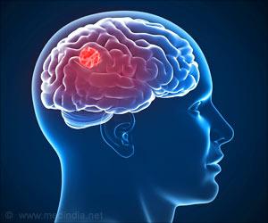 Quiz on Brain Tumor (Advance)