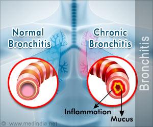 Quiz on Bronchitis (Advance)