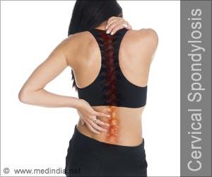 Quiz on Cervical Spondylosis (Advance)