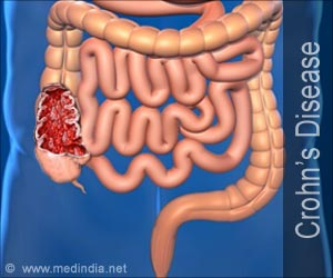 Quiz on Crohn's Disease (Advance)
