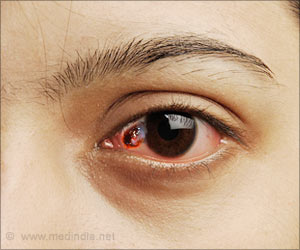 Quiz on Eye Cancer (Advance)