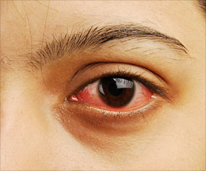 Quiz on Eye Disorders (Advanced)