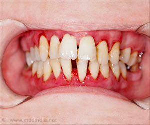 Test Your Knowledge on Gum Diseases