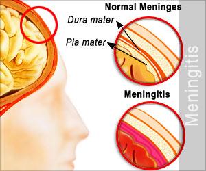Quiz on Meningitis (Advance)
