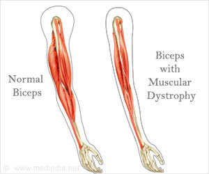 Quiz on Muscular Dystrophy (Advance)