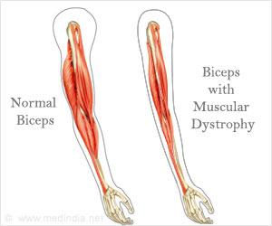 quiz on muscular dystrophy