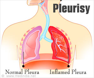 Quiz On Pleurisy Advanced